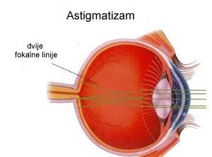astigmatizam_2