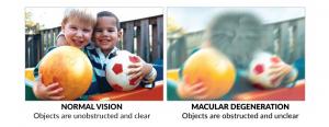 macular-deg